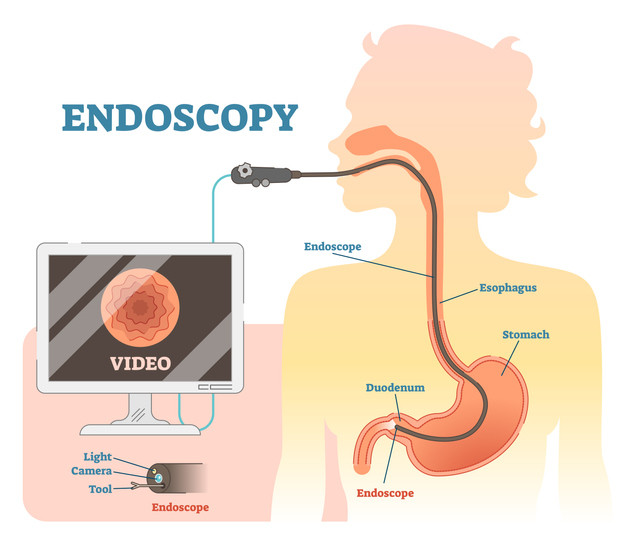 endoscopy in Redding